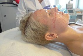 Mezoterapia igłowa warszawa